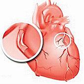 Cinco mitos sobre el infarto