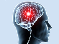 Ischemia of the brain - and the effects of treatment