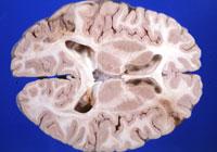 мозак енцефалопатија