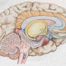 Узроци и механизми који доводе до можданих абнормалности