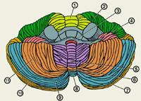 ataxie cerebeloasă