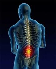 рехабилитација пацијената са Гиљен-Бареовог синдрома
