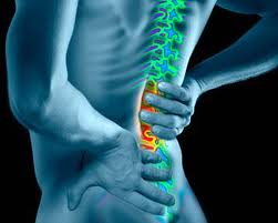 Lo que hay que saber sobre aracnoiditis espinal