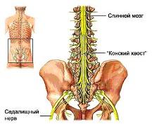Dlatego nerwu kulszowego ból