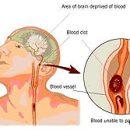 accident vasculaire cérébral prendre un coup
