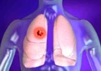 lung cancer typer og symptomer