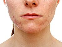 """""""Лит-Боја» ® - брзо и ефикасно лечење коже!"""