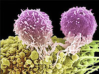 A new kind of tumor marker in the diagnosis of ovarian cancer