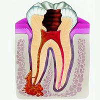 зуб циста