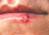лимфоми