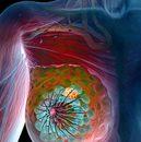 zapoznał się z gruczolakowłókniak piersi