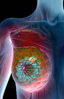 bekendtskab med bryst fibroadenoma