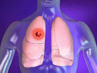 lung disease risk factors