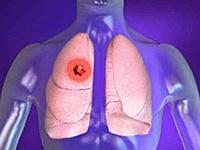 Lungenkrebs, die Krankheit Risikofaktoren