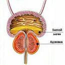 BPH prostate adenoma