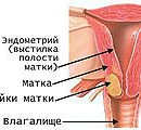 Рак грлића материце 3