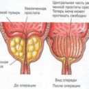 postoperative period after resection of the prostate