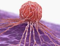 Wie schlagen Magenkrebs