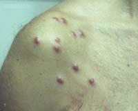 powikłania girudoterapii