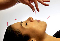 Chinese medicine acupuncture almighty