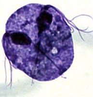 La infección y la distribución trihomaniaza