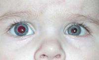 Cytomegalovirus infektion hos børn