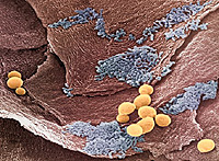 candidiasis visceral system