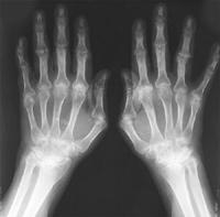 πόνος στις αρθρώσεις, ανατρέξτε στην αφροδίσια νοσήματα