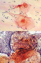 vaginalni dysbacteriosis