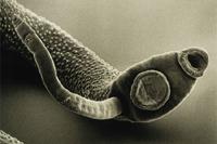 Giardiasis: diagnosis and treatment