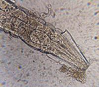 какво hymenolepiasis