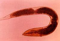 Ентеробиасис или пинворм инфекција