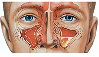 Treatment for sinusitis: conservative and surgical methods