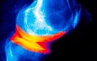 Gefährliche Krankheit Arthrose lehnt Gewalt