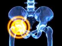 Os sintomas clínicos da osteoartrite do quadril