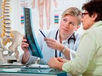 Estágios de desenvolvimento de osteoartrite do quadril
