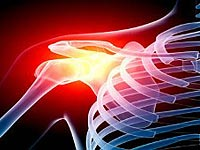 Osteoarthritis of the shoulder joint disease treatment