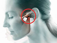 La osteoartritis de la articulación temporomandibular, causas y manifestaciones