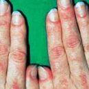 дерматомиозитис