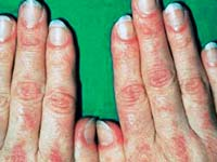 Dermatomyositis: Pathogenesis and classification