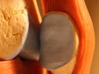Die Behandlung von Osteoarthritis des Knies Grad und Diagnose