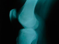 X-ray diagnosis of osteoarthritis of the knee 2 degrees
