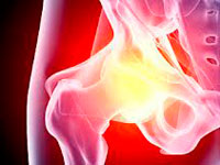 diagnosis of osteoarthritis