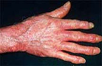 What is systemic scleroderma