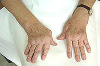За ревматоиден артрит