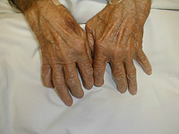 Rheumatoid arthritis, treatment