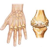 што треба да знате о реуматоидном артритису