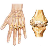 What you need to know about rheumatoid arthritis