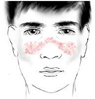 lupus eritematoso sistémico que hay que saber sobre él