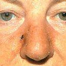 лупус еритематозус